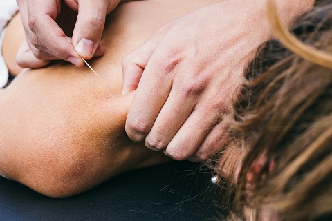 Trigger Point Dry Needling Therapy