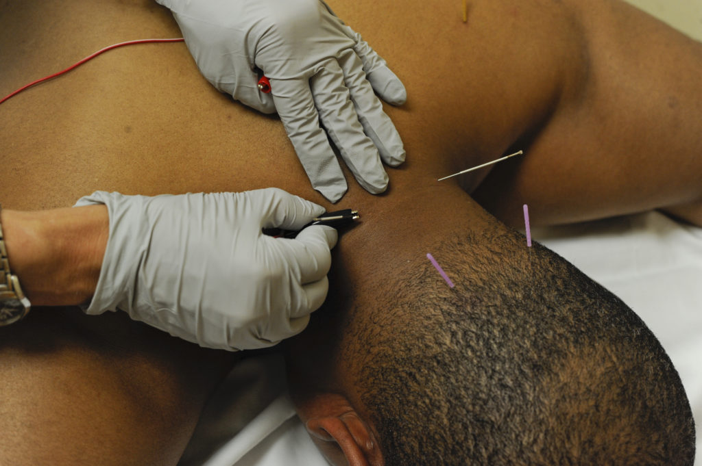 dry needling example
