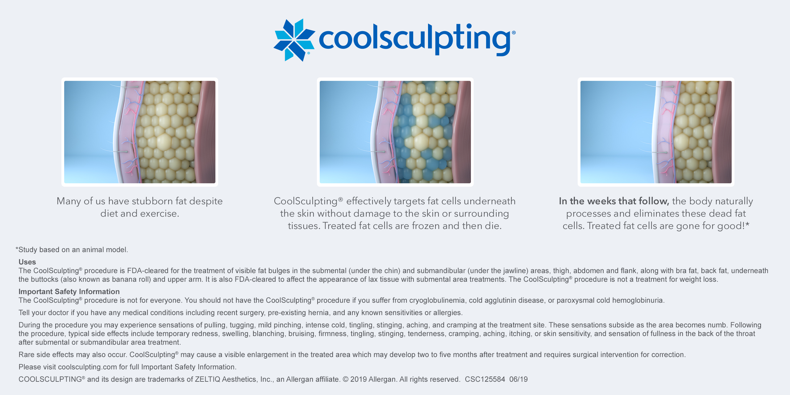 How-CoolSculpting-Works-Illustration-Horizontal